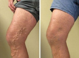Before and after using Varicobooster 4